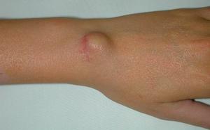 Le dermatologue Gonne Jimmy (Cliquez pour plus d'infos)